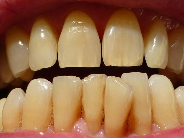 Tại sao răng bị vàng và giải pháp khắc phục hiệu quả