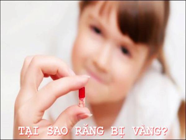 Dùng thuốc khánh sinh gây vàng răng ở trẻ