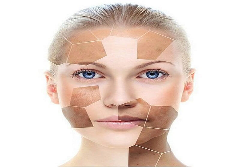 Nám da xuất phát từ nhiều nguyên nhân khác nhau